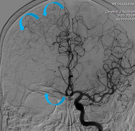 Angio Showing Left ICA Tip Occlusion.png