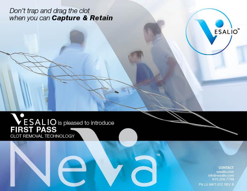 NeVa Neurothrombectomy Devices #StrokeInnovation #StrokeTreatment
