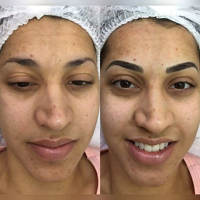 Before & After Hybrid Brows