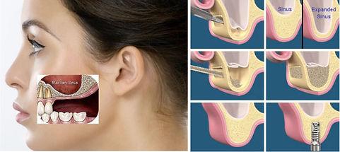 sinus lift lateral.jpg
