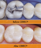Rockville Dental Clinic, Rockville, Indiana, dentist