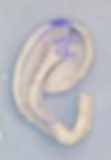 肋軟骨移植2.png