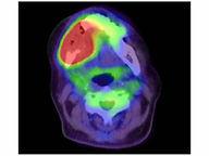 頭頸部PETイメージ縮小.jpg