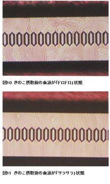 おいしく食べよう キノコキトサン図3.jpg