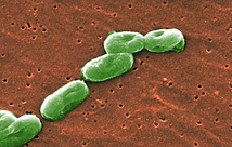 To save a young woman besieged by superbugs, scientists hunt a killer virus