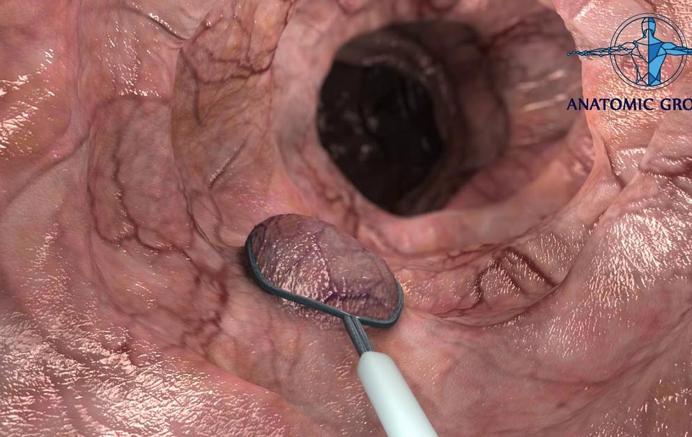colon polyp removal