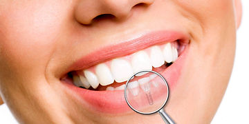 implantologia-dentale-1280x640.jpg