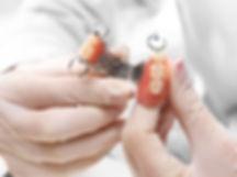 Protesi-dentaria-rimovibile.jpg