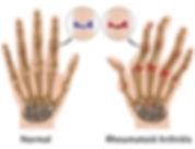 PEMF for rheumatic arthritis