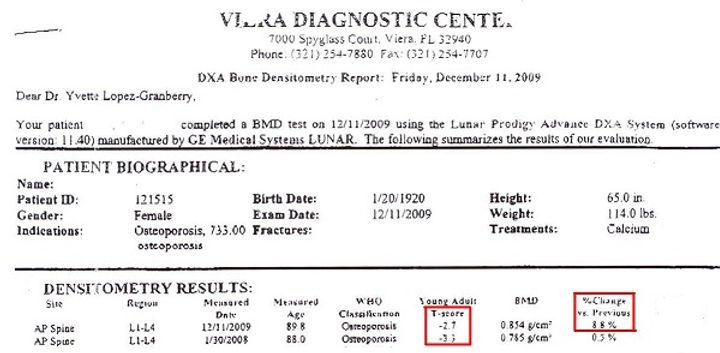 Osteoporosis T-Score Scan