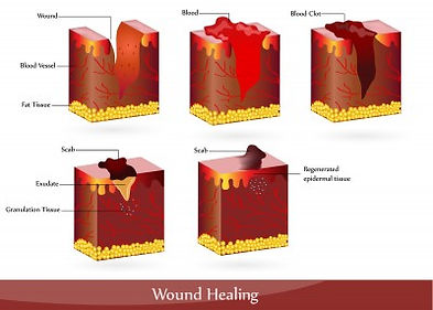 PEMF for wound healing