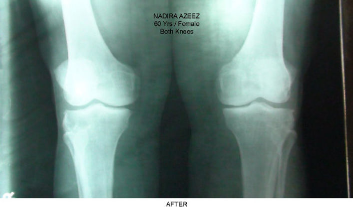 Knee arthritis after Curatron PEMF therapy