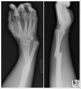 PEMF for Fracture Healing