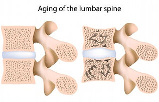 Osteoporotic Spine therapy with pemf