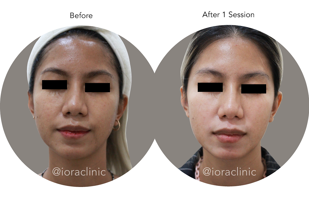 Cara menghilangkan kulit kusam, perawatan kulit kusam bersama dr. Edwin Tanihaha, Sp. KK, Dip. AAAM, MHKes, FKCCS di IORA Clinic