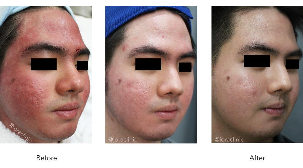 perawatan laser (laser treatment) rosacea bersama dr.Edwin Tanihaha, Sp. KK, Dip. AAAM, MHKes, FKCCS.