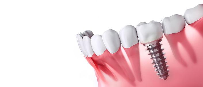 fundo-implante-dentario2.jpg