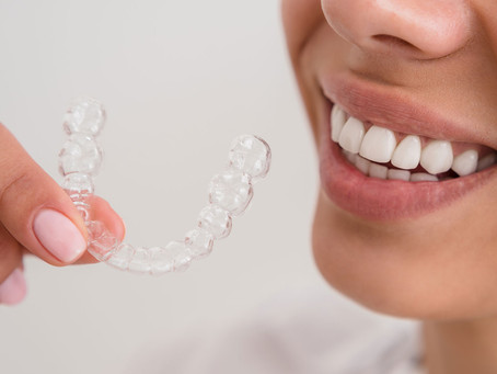 Clareamento Dentário: o bom aliado do bem-estar