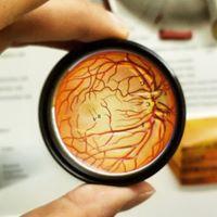retina 2.jpg