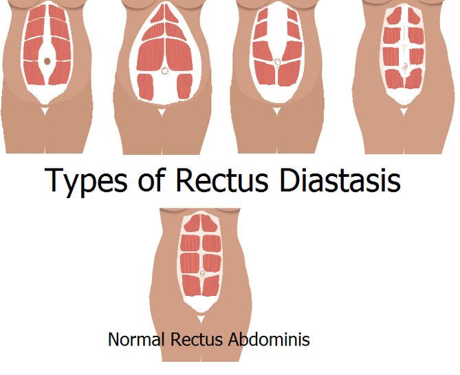 What is Rectus Diastasis?