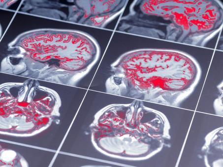 Come il respiro influenza positivamente il cervello calmandolo
