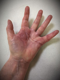 picture of a hand 3 months after the operation for Dupuytren's contracture.
