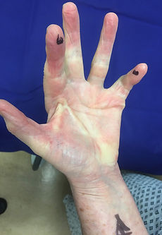 Image of a hand affected by Dupuytren's disease, with a cord restricting the first web space, another cord bending the index finger  and a third cord causing little finger contracture.