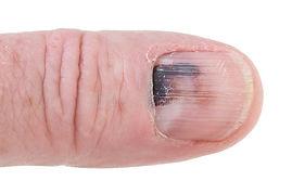 bruised nail.jpg