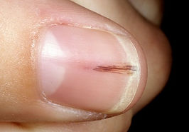 splinter hemorrhages.jpg
