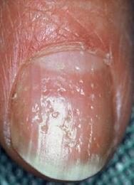 pitting nails.jpg