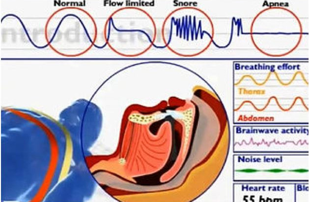 Sleep Apnea: What is it?  And What is the Best Treatment?