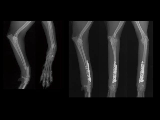 Oblique Fracture