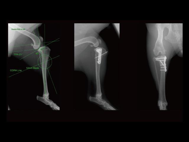 CBLO / CORA Based Leveling Osteotomy