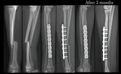 Radius fracture