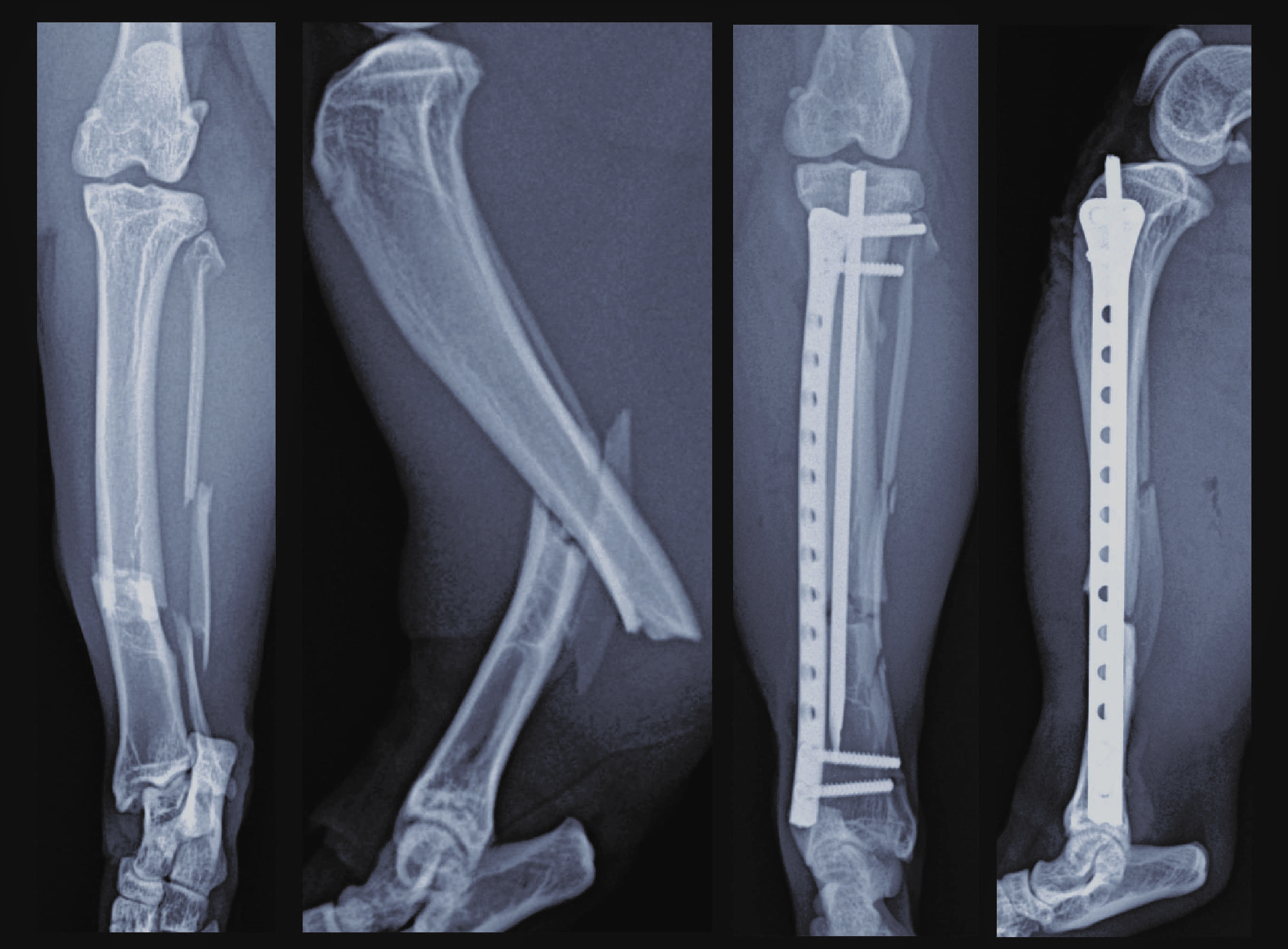 Tibia Fracture / MIPO