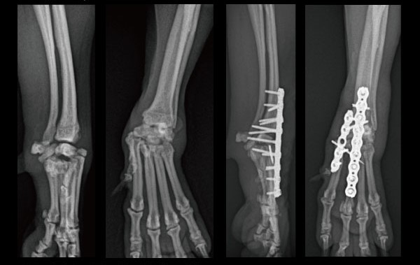 Capal joint arthrodesis