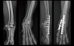 Capal joint arthrodesis