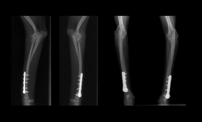 Both Sides Fracture