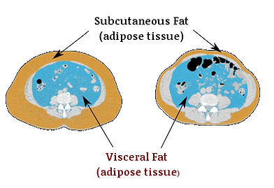 abdominal cross section