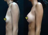 Aumento Protesis Anatomica 350cc