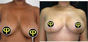 Mamoplastia Reductora