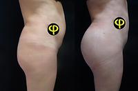 Aumento Gluteo con Implante
