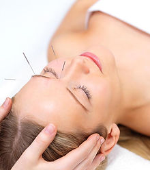 cosmetic acupuncture for both men and women