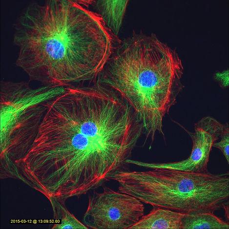 蛍光顕微鏡の特徴 - 高解像度