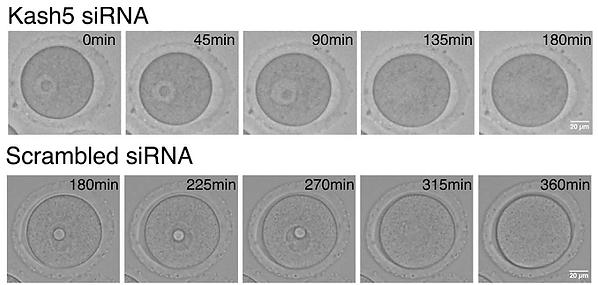 細胞観察-Germinal Vesicle Breakdown
