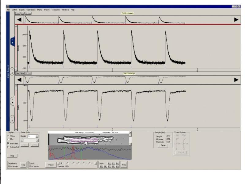 心筋細胞の収縮性、サルコメア、カルシウムを同時に測定