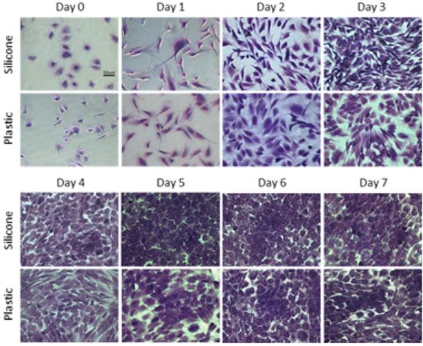 図:シリコン膜(Flexcell®コラーゲンIコーティングHTBioFlex®プレート)または24ウェルプラスチック培養プレートのいずれかで培養の0〜7日目にクリスタルバイオレットで染色された腱線維芽細胞の画像。Scale bar = 50um