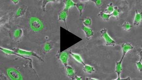 タイムラプス蛍光顕微鏡でできることは?