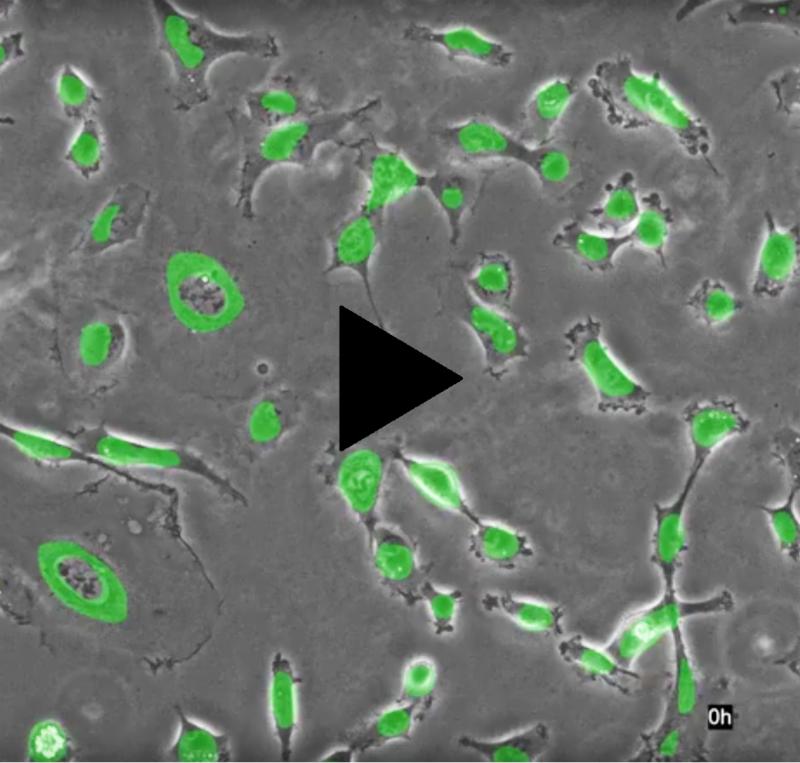 タイムラプス蛍光顕微鏡での観察画像