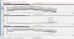 単離心筋細胞 収縮・カルシウム測定システム